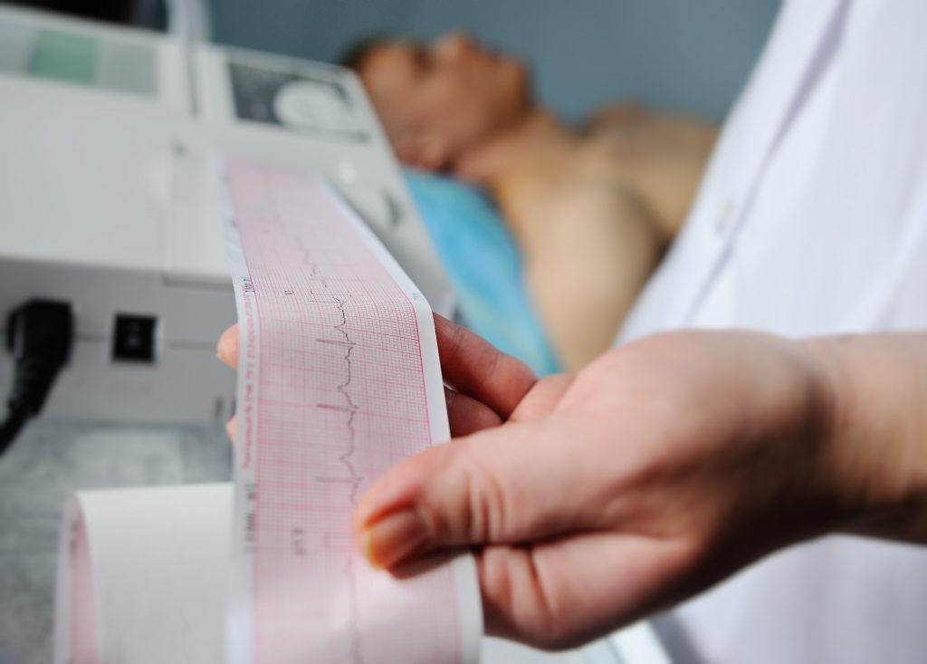 EKG vyšetrenie u všeobecného lekára