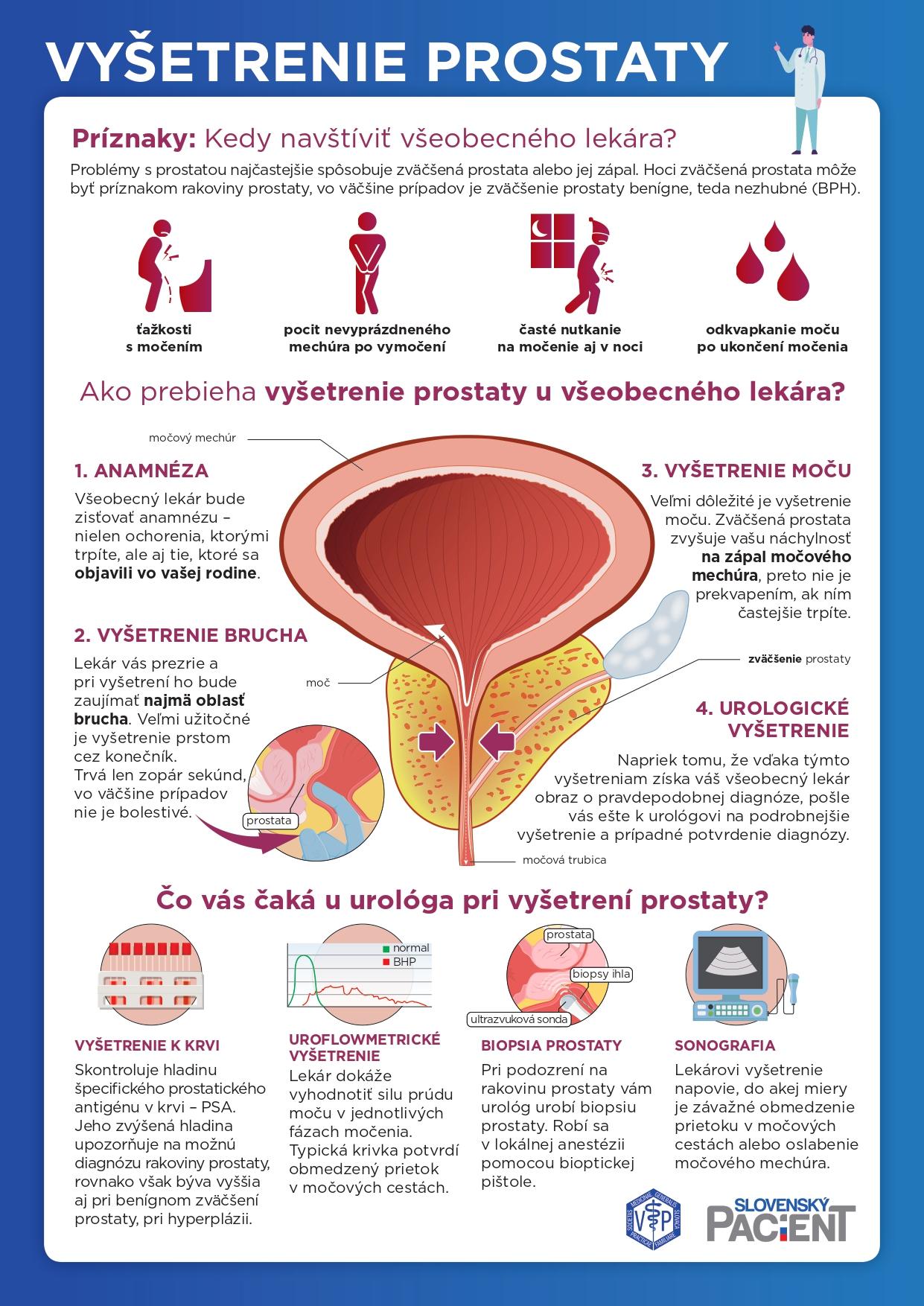 Vyšetrenie prostaty u všeobecného lekára a urológa
